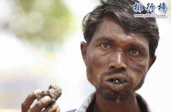 世界上最怪异的病排行:异食癖、口颊坏疽、鱼鳞症、先听性无眼