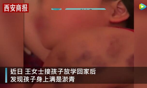 辽宁一名8岁女儿放学回家喊身上疼 妈妈掀开衣服一看崩溃了!